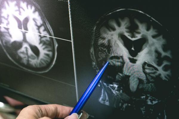 알츠하이머로 과도기 증상인 경도인지장애(MCI) 관련 기술 보유 파트너 모집 (Closed)